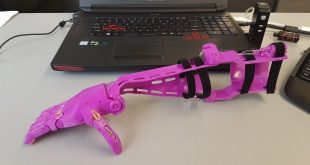 Paige's New 3D Printed Prosthetic Arm