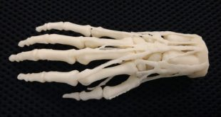 Stratasys Teams Up with US Veterans Affairs for Collaborative 3D Printing Hospital Network