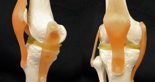 Duke Researchers Develop Clay Based Double Hydrogel for Knee Reconstruction