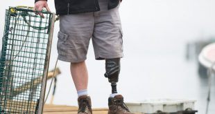 AtlanticProCare Launches 3D Printing Program for Custom Prostheses