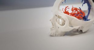 3D Systems Launch Certified Partner Program for Medical Implants