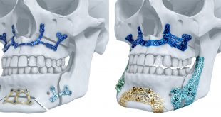TRUMATCH Maxillofacial Implants by Materialise Gets US Market Green Light