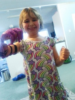 Paige with her new arm